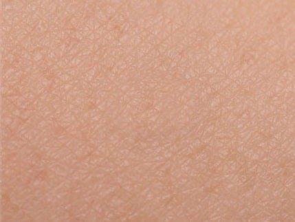 דוקטור קונפינו הסרת שומות וגושים שפיריים